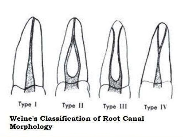 Internal Anatomy Of Anterior Tooth