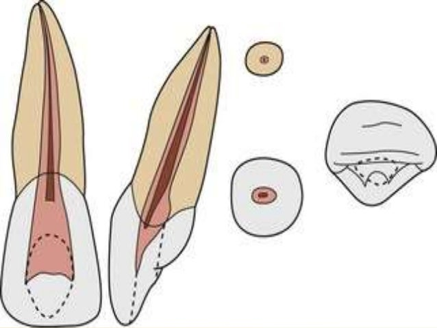 Anterior tooth anatomy
