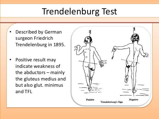 Internal causes of hip pain - Itamar Botser, MD