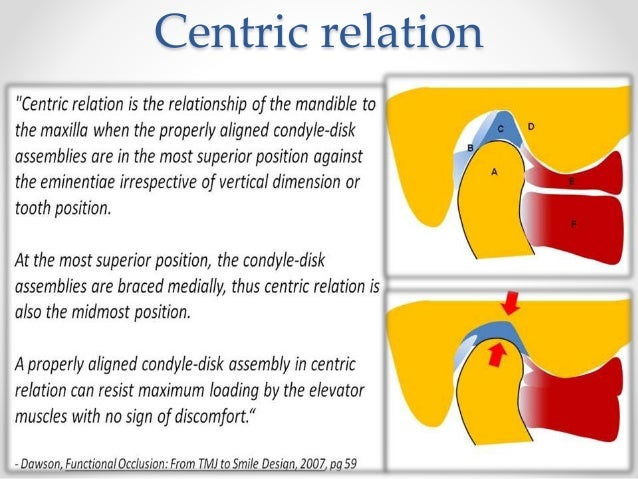 centric relation