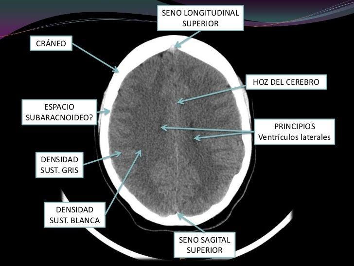 INTERPRETACION DE ANATOMIA CEREBRAL EN UNA TAC CRANEAL