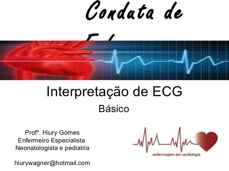 Interpretação de ECG Básico  Conduta de Enfermagem Profº. Hiury Gomes Enfermeiro Especialista  Neonatologista e pediatria ...