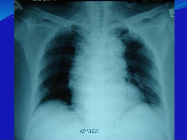 Floor penetration x-rays