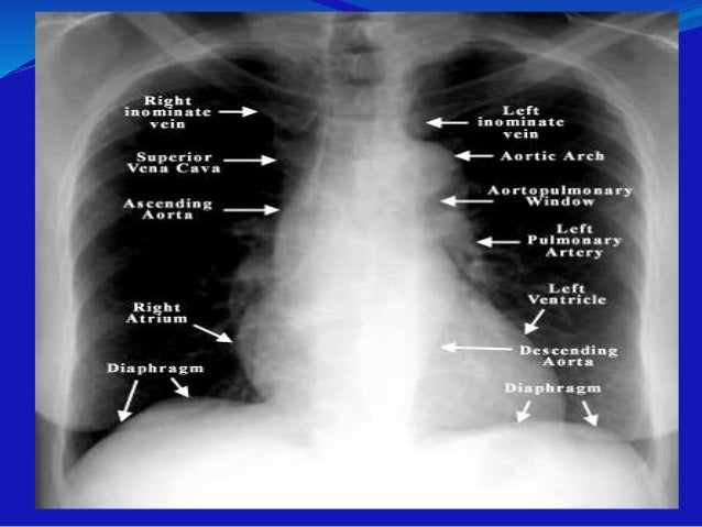 Pulmonary Fibrosis X Ray Interpretation of ches...