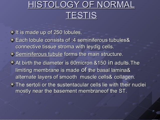 Interpretation of testicular biopsy Slide 3