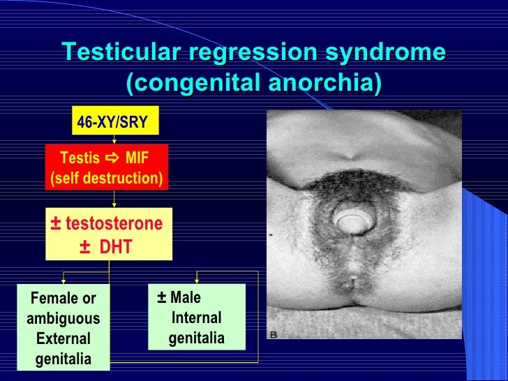 Testicular regression syndrome (congenital anorchia) 46-XY/SRY   Testis    MIF  (self destruction) ± testosterone  ±  DHT...