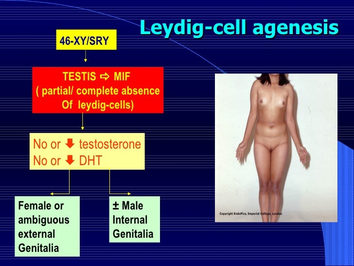 Leydig-cell agenesis 46-XY/SRY   TESTIS    MIF  ( partial/ complete absence Of  leydig-cells) No or    testosterone No o...