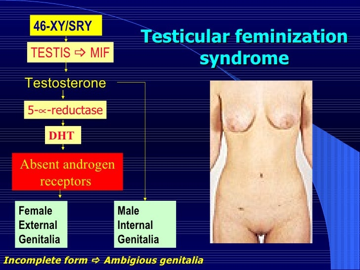 Testicular feminization syndrome 46-XY/SRY  TESTIS    MIF Testosterone  5-  -reductase DHT  Absent androgen receptors  M...