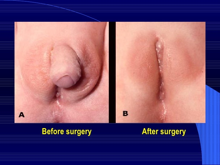 hermaphrodite surgery to choose sex