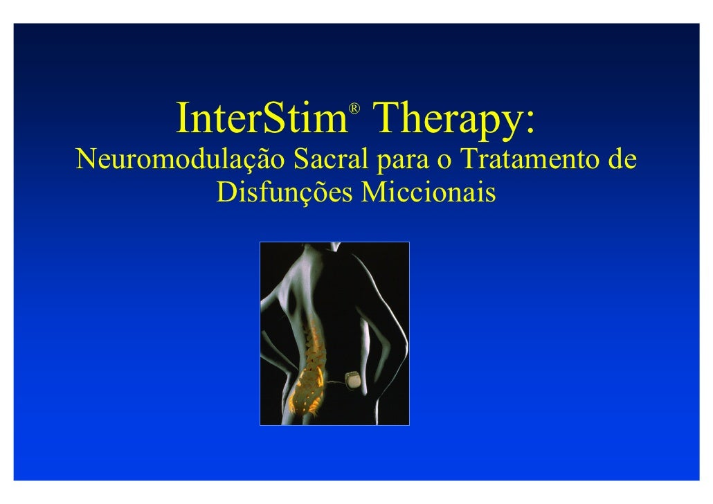 Interstim dr marcio averbeck
