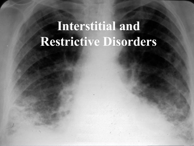 Interstitial and Restrictive Disorders