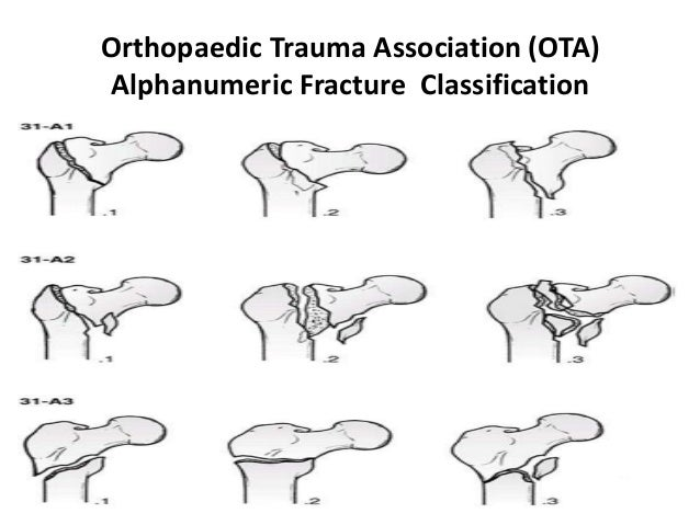 Orthopaedic Trauma Association (OTA) Alphanumeric Fracture Classification