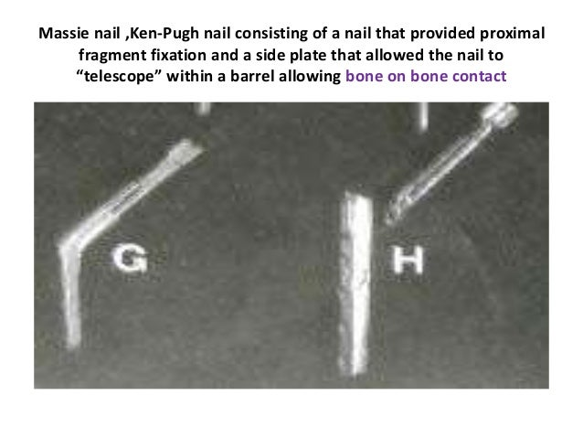 Massie nail ,Ken-Pugh nail consisting of a nail that provided proximal fragment fixation and a side plate that allowed the...