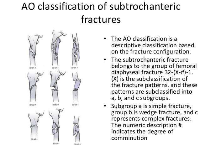 Intertrochanteric & subtrochanteric fracture classification