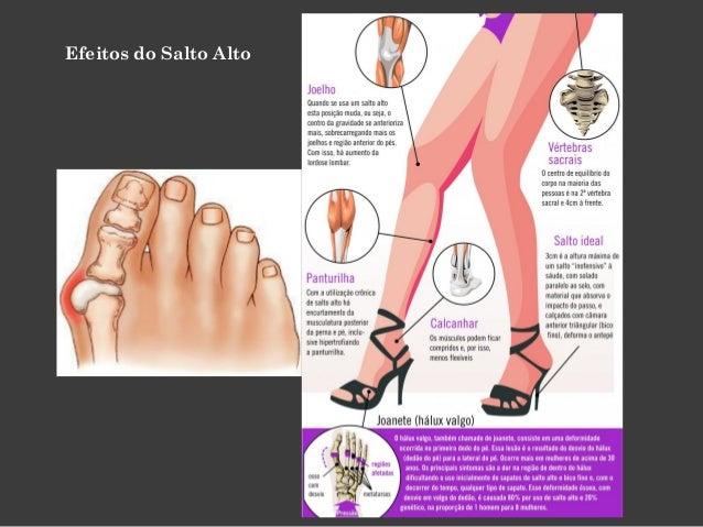 Observar a sola dos sapatos ajuda a identificar deformidades