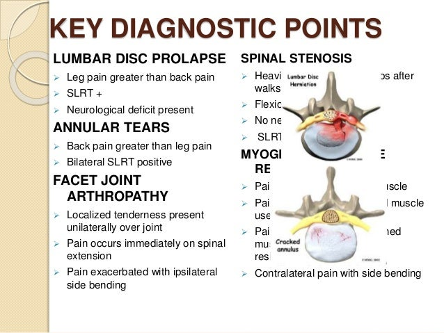 lumbar intervertebral disc prolapse, Human Body