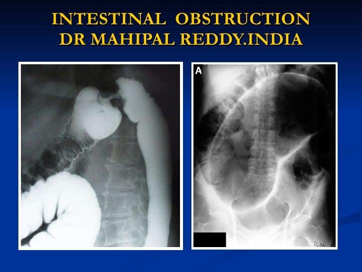 INTESTINAL  OBSTRUCTION DR MAHIPAL REDDY.INDIA