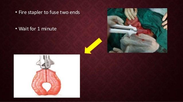 Intestinal anastomosis and staplers