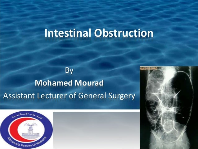 Intestinal Obstruction By Mohamed Mourad Assistant Lecturer of General Surgery