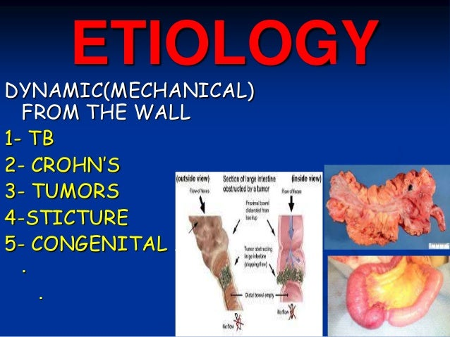 ETIOLOGY DYNAMIC(MECHANICAL) FROM THE WALL 1- TB 2- CROHN'S 3- TUMORS 4-STICTURE 5- CONGENITAL ……… . .