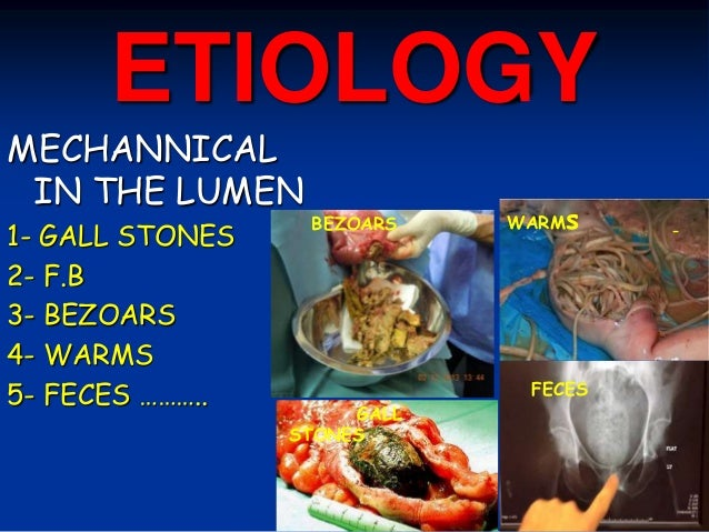 ETIOLOGY MECHANNICAL IN THE LUMEN 1- GALL STONES 2- F.B 3- BEZOARS 4- WARMS 5- FECES ……….. GALL STONES BEZOARS WARMs FECES