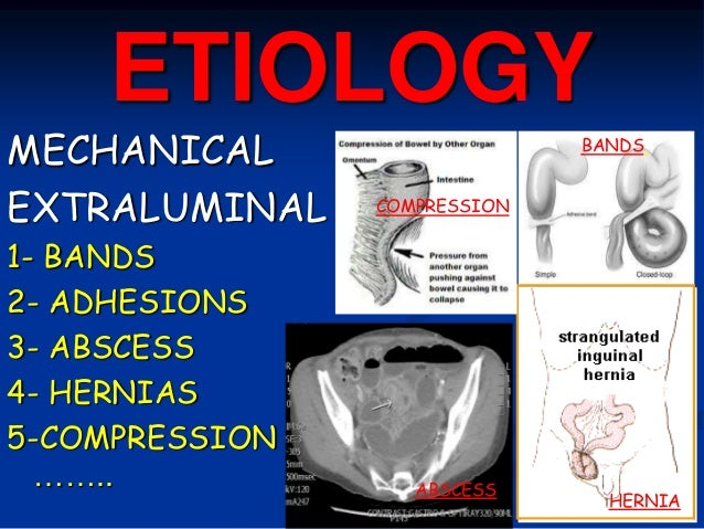 ETIOLOGY MECHANICAL EXTRALUMINAL 1- BANDS 2- ADHESIONS 3- ABSCESS 4- HERNIAS 5-COMPRESSION …….. BANDS ABSCESS COMPRESSION ...