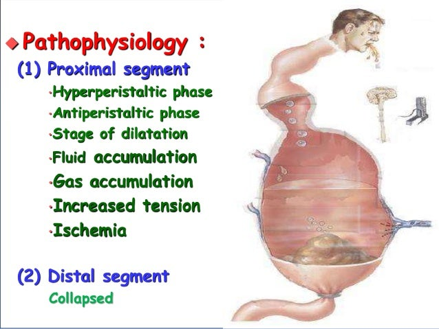  Pathophysiology : (1) Proximal segment •Hyperperistaltic phase •Antiperistaltic phase •Stage of dilatation •Fluid accumu...