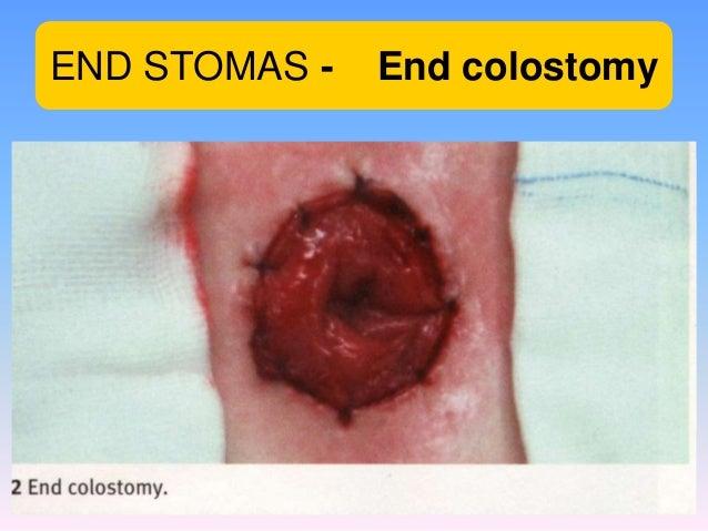 End Colostomy Intestinal stomas