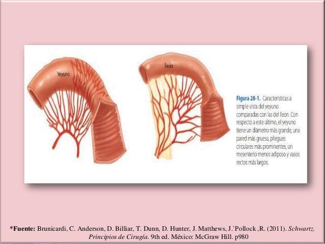 Patologias Quirurgicas del Intestino Delgado