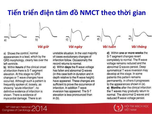 Tiến triển điện tâm đồ NMCT theo thời gian Vài giờ Vài ngày Vài tuần Vài tháng