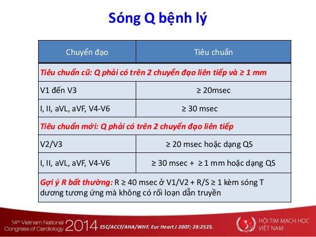 Sóng Q bệnh lý Chuyển đạo Tiêu chuẩn Tiêu chuẩn cũ: Q phải có trên 2 chuyển đạo liên tiếp và ≥ 1 mm V1 đến V3 ≥ 20msec I, ...