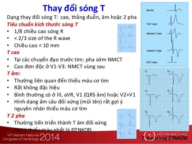 Thay đổi sóng T Dạng thay đổi sóng T: cao, thẳng đuỗn, âm hoặc 2 pha Tiêu chuẩn kích thước sóng T • 1/8 chiều cao sóng R •...
