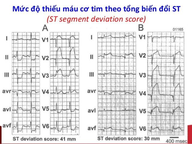 Mức độ thiếu máu cơ tim theo tổng biến đổi ST (ST segment deviation score)