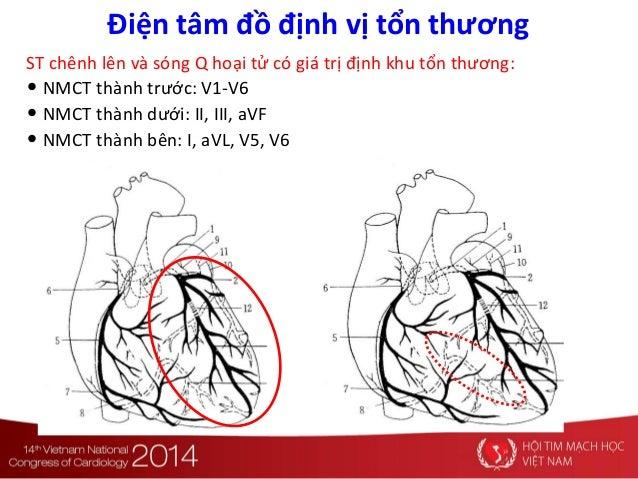 Điện tâm đồ định vị tổn thương ST chênh lên và sóng Q hoại tử có giá trị định khu tổn thương: • NMCT thành trước: V1-V6 • ...
