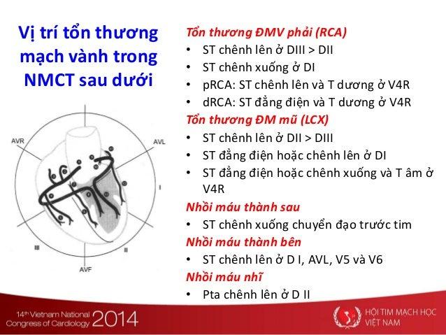 Vị trí tổn thương mạch vành trong NMCT sau dưới Tổn thương ĐMV phải (RCA) • ST chênh lên ở DIII > DII • ST chênh xuống ở D...