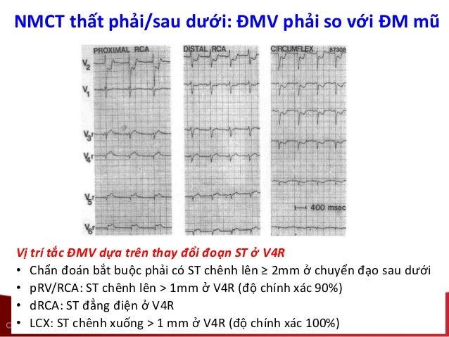 NMCT thất phải/sau dưới: ĐMV phải so với ĐM mũ Vị trí tắc ĐMV dựa trên thay đổi đoạn ST ở V4R • Chẩn đoán bắt buộc phải có...