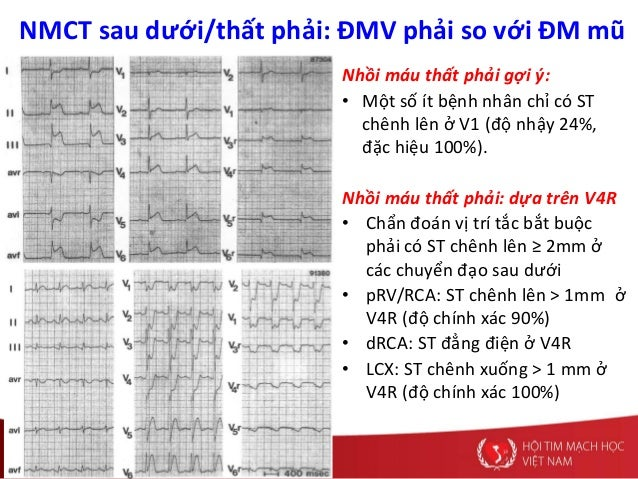 NMCT sau dưới/thất phải: ĐMV phải so với ĐM mũ Nhồi máu thất phải gợi ý: • Một số ít bệnh nhân chỉ có ST chênh lên ở V1 (đ...