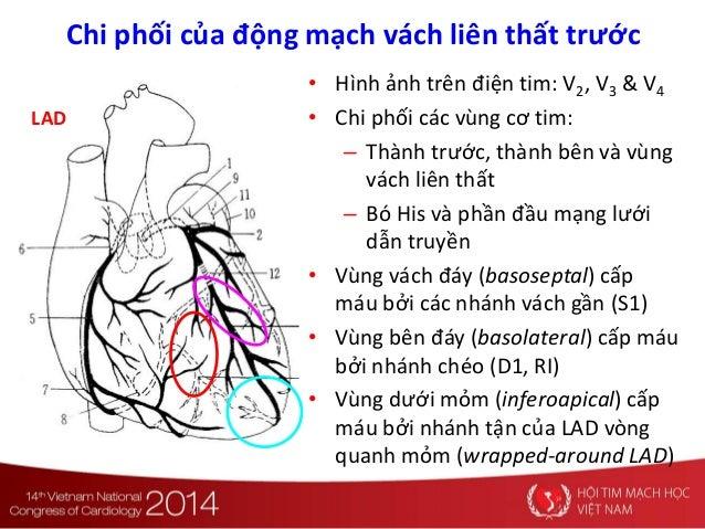 • Hình ảnh trên điện tim: V2, V3 & V4 • Chi phối các vùng cơ tim: – Thành trước, thành bên và vùng vách liên thất – Bó His...
