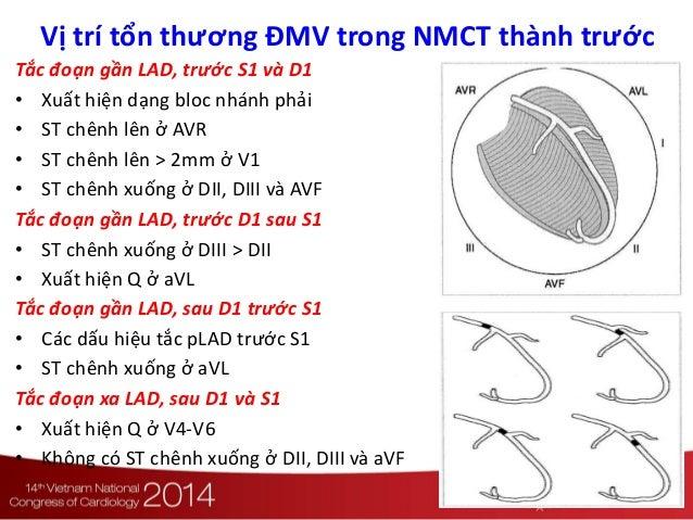 Vị trí tổn thương ĐMV trong NMCT thành trước Tắc đoạn gần LAD, trước S1 và D1 • Xuất hiện dạng bloc nhánh phải • ST chênh ...