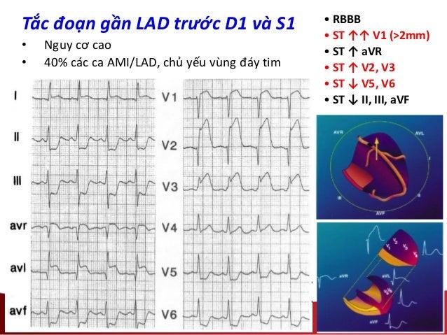 Tắc đoạn gần LAD trước D1 và S1 • Nguy cơ cao • 40% các ca AMI/LAD, chủ yếu vùng đáy tim • RBBB • ST ↑↑ V1 (>2mm) • ST ↑ a...