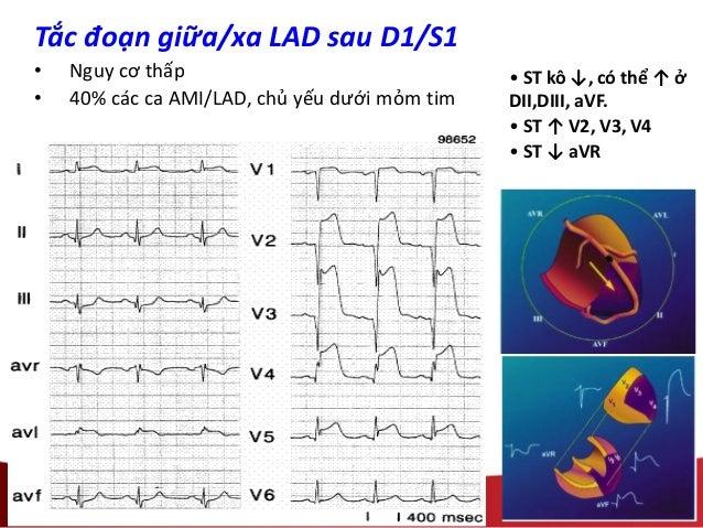 Tắc đoạn giữa/xa LAD sau D1/S1 • Nguy cơ thấp • 40% các ca AMI/LAD, chủ yếu dưới mỏm tim • ST kô ↓, có thể ↑ ở DII,DIII, a...