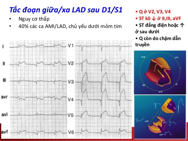 • Q ở V2, V3, V4 • ST kô ↓ ở II,III, aVF • ST đẳng điện hoặc ↑ ở sau dưới • Q còn do chậm dẫn truyền Tắc đoạn giữa/xa LAD ...