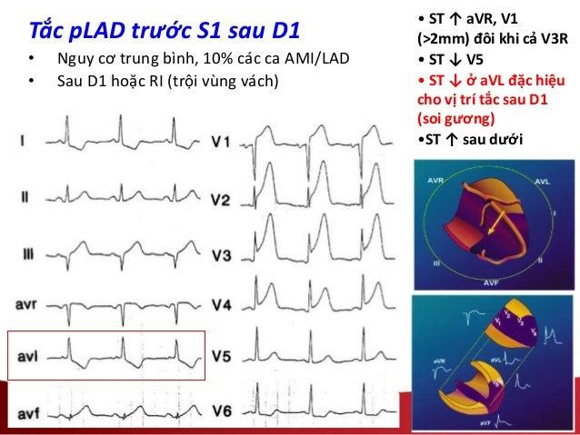• ST ↑ aVR, V1 (>2mm) đôi khi cả V3R • ST ↓ V5 • ST ↓ ở aVL đặc hiệu cho vị trí tắc sau D1 (soi gương) •ST ↑ sau dưới Tắc ...