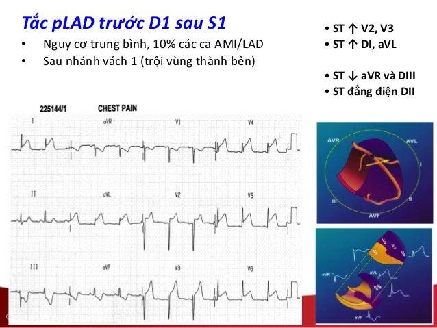 • ST ↑ V2, V3 • ST ↑ DI, aVL • ST ↓ aVR và DIII • ST đẳng điện DII Tắc pLAD trước D1 sau S1 • Nguy cơ trung bình, 10% các ...