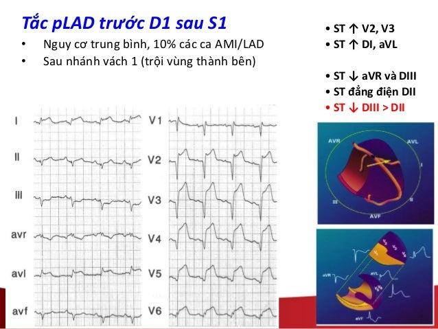• ST ↑ V2, V3 • ST ↑ DI, aVL • ST ↓ aVR và DIII • ST đẳng điện DII • ST ↓ DIII > DII Tắc pLAD trước D1 sau S1 • Nguy cơ tr...