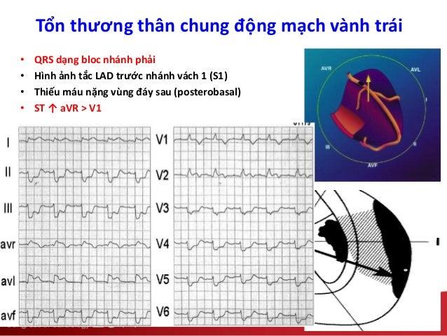 Tổn thương thân chung động mạch vành trái • QRS dạng bloc nhánh phải • Hình ảnh tắc LAD trước nhánh vách 1 (S1) • Thiếu má...