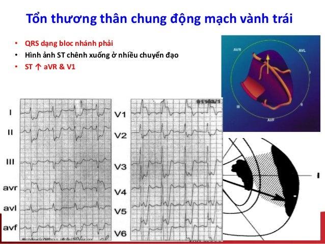 Tổn thương thân chung động mạch vành trái • QRS dạng bloc nhánh phải • Hình ảnh ST chênh xuống ở nhiều chuyển đạo • ST ↑ a...