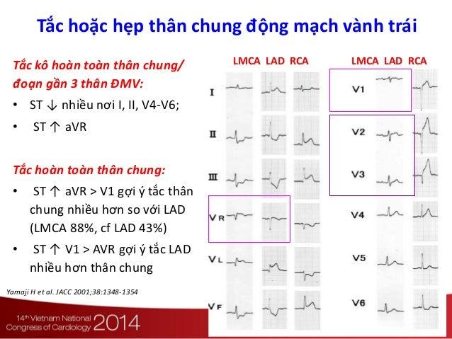 LMCA LAD RCA LMCA LAD RCATắc kô hoàn toàn thân chung/ đoạn gần 3 thân ĐMV: • ST ↓ nhiều nơi I, II, V4-V6; • ST ↑ aVR Tắc h...
