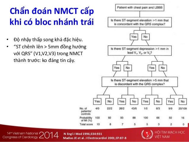 N Engl J Med 1996;334:931 Madias JE et al. J Electrocardiol 2001;37:87-8 Chẩn đoán NMCT cấp khi có bloc nhánh trái • Độ nh...