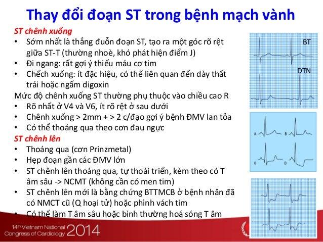 BT DTN ST chênh xuống • Sớm nhất là thẳng đuỗn đoạn ST, tạo ra một góc rõ rệt giữa ST-T (thường nhoè, khó phát hiện điểm J...